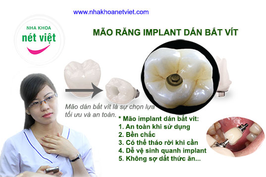 mao-implant-bat-vit-02